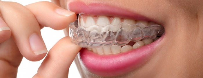 Grinding Teeth at Night: 5 Tips to Help You Stop
